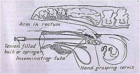 Cathétérisme cervical voie recto-vaginale